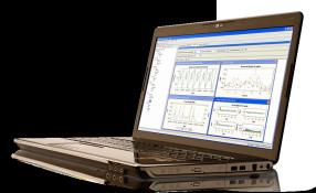 SAS Forecast Server affiché sur un ordinateur portable